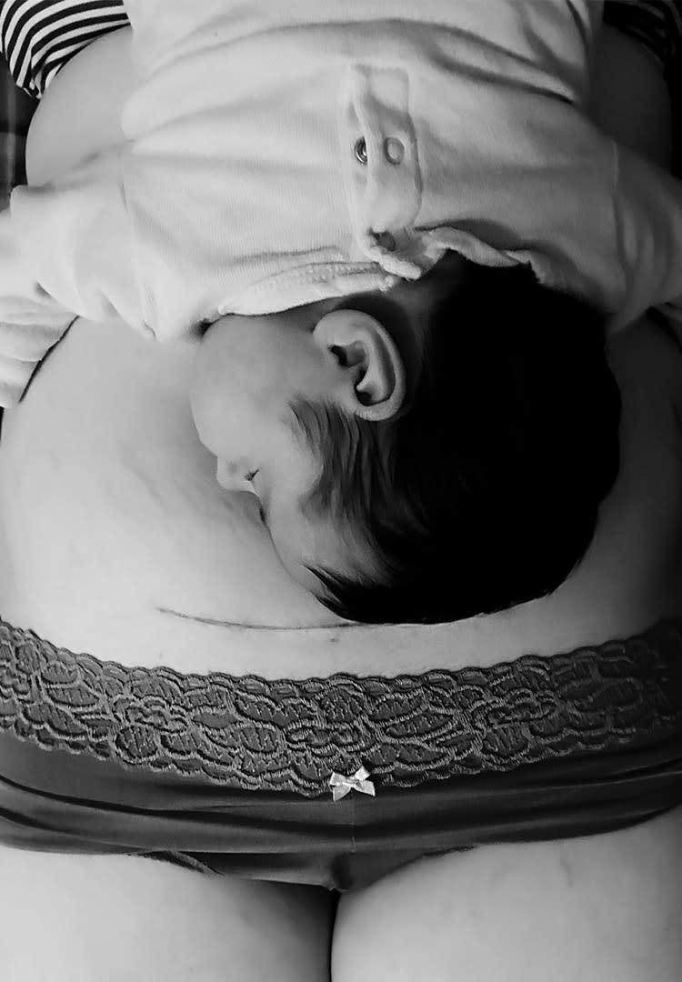 c-section-scar-mom-newborn-belly