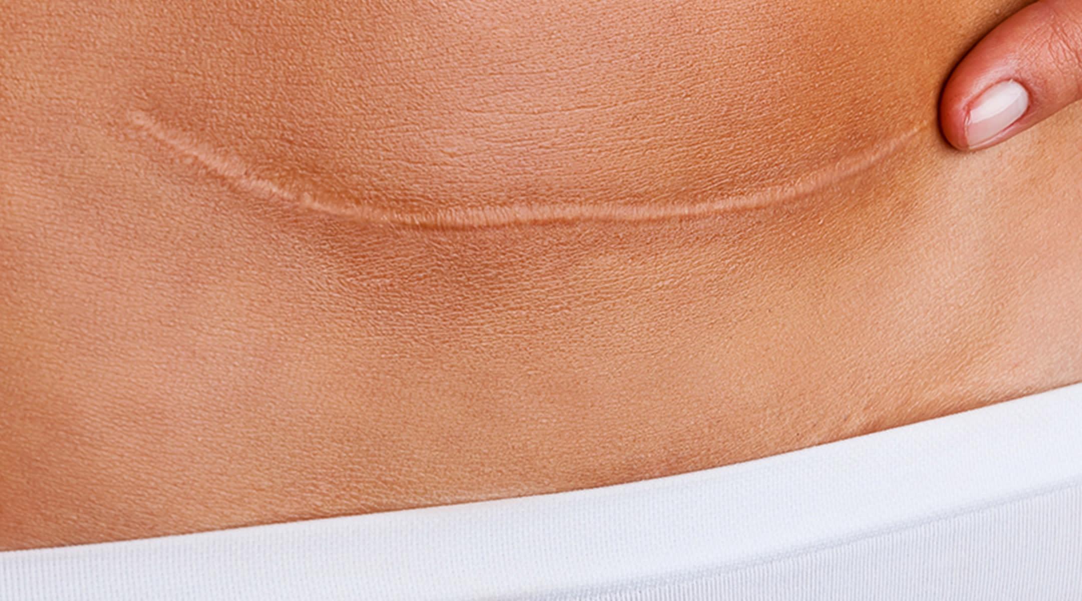 Cesarean section scar