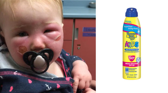 Baby with severe burns on face from sunscreen
