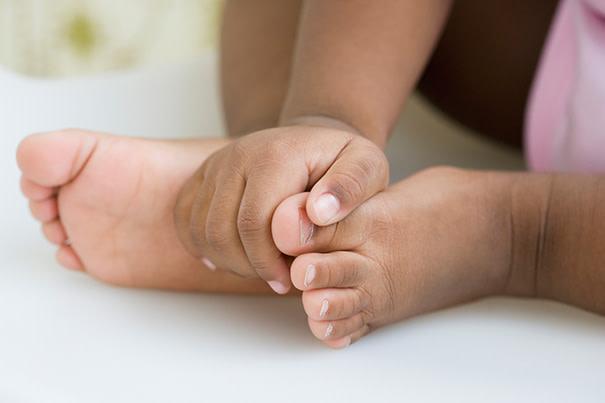 uñas de los pies encarnadas en niños pequeños