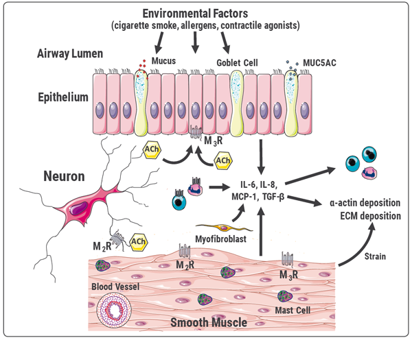 Figure 2. Model of the Mechanisms Underlying Paucigranulocytic Asthma