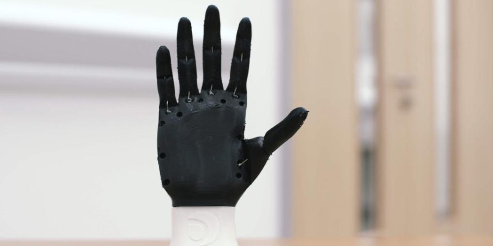 Open Bionics: 3D printed prosthetic limbs