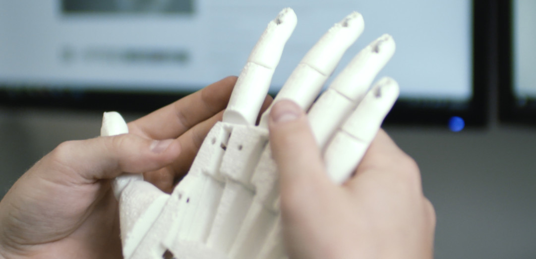 Open Bionics: 3D printed prosthetic limbs