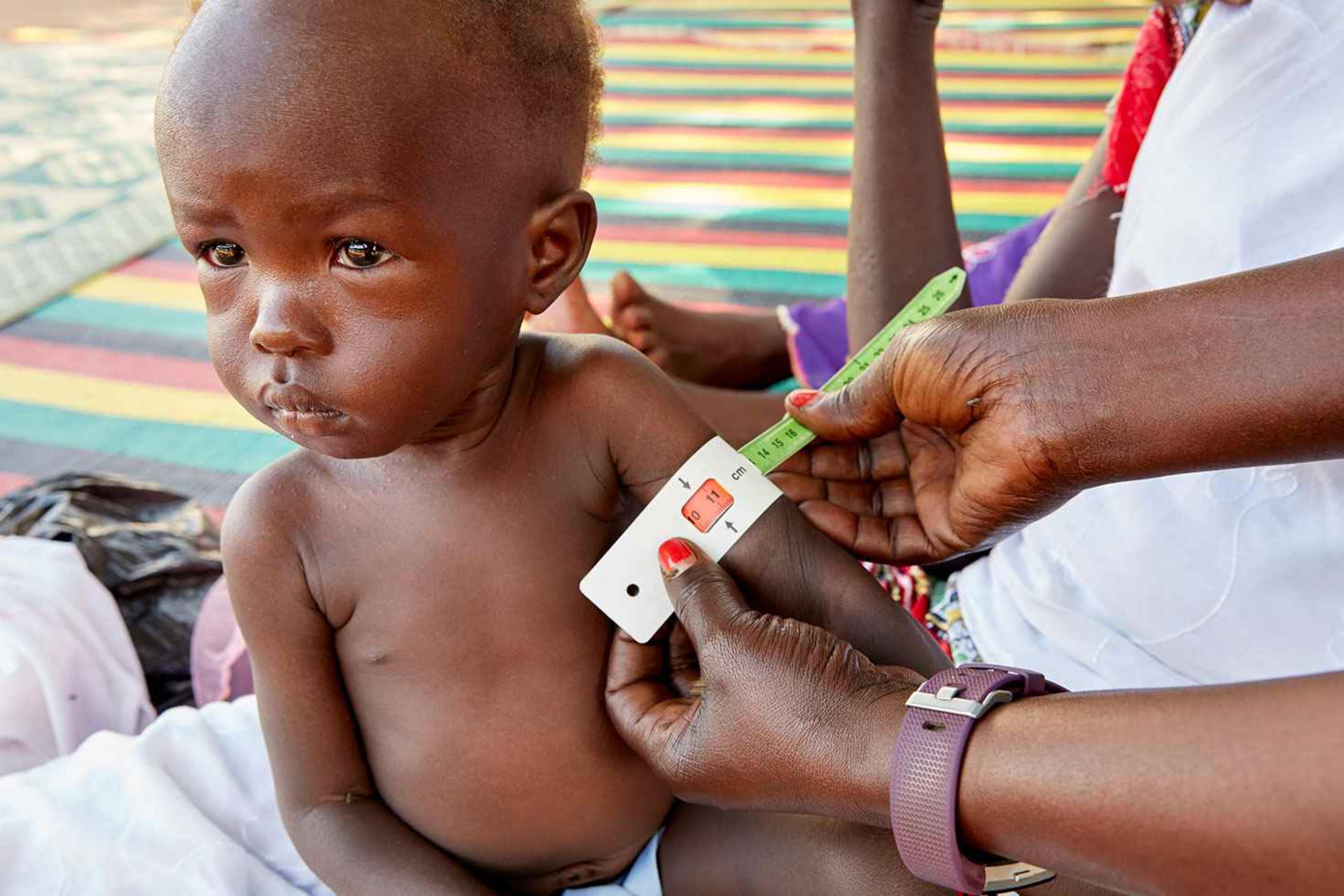 Adut is measured by UNICEF nutritionist