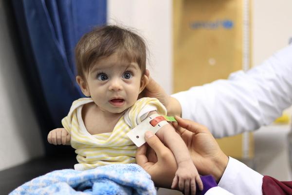 UNI310541/UNICEF
