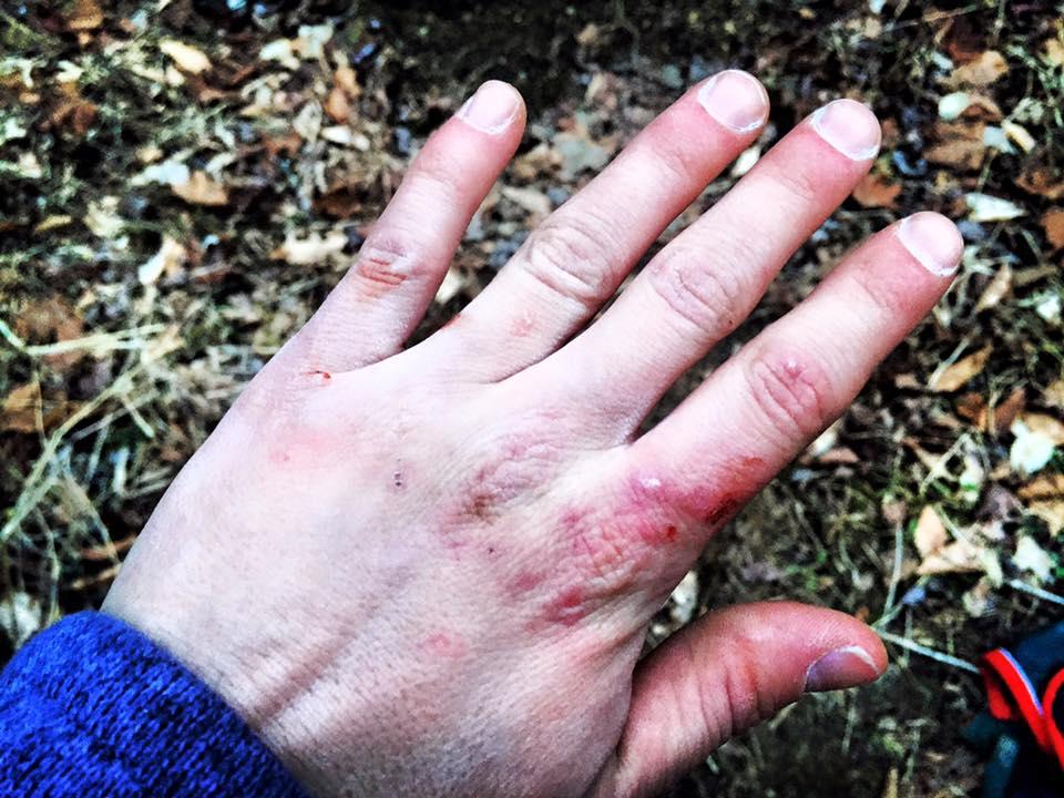 Female Climbers Grazed Hand