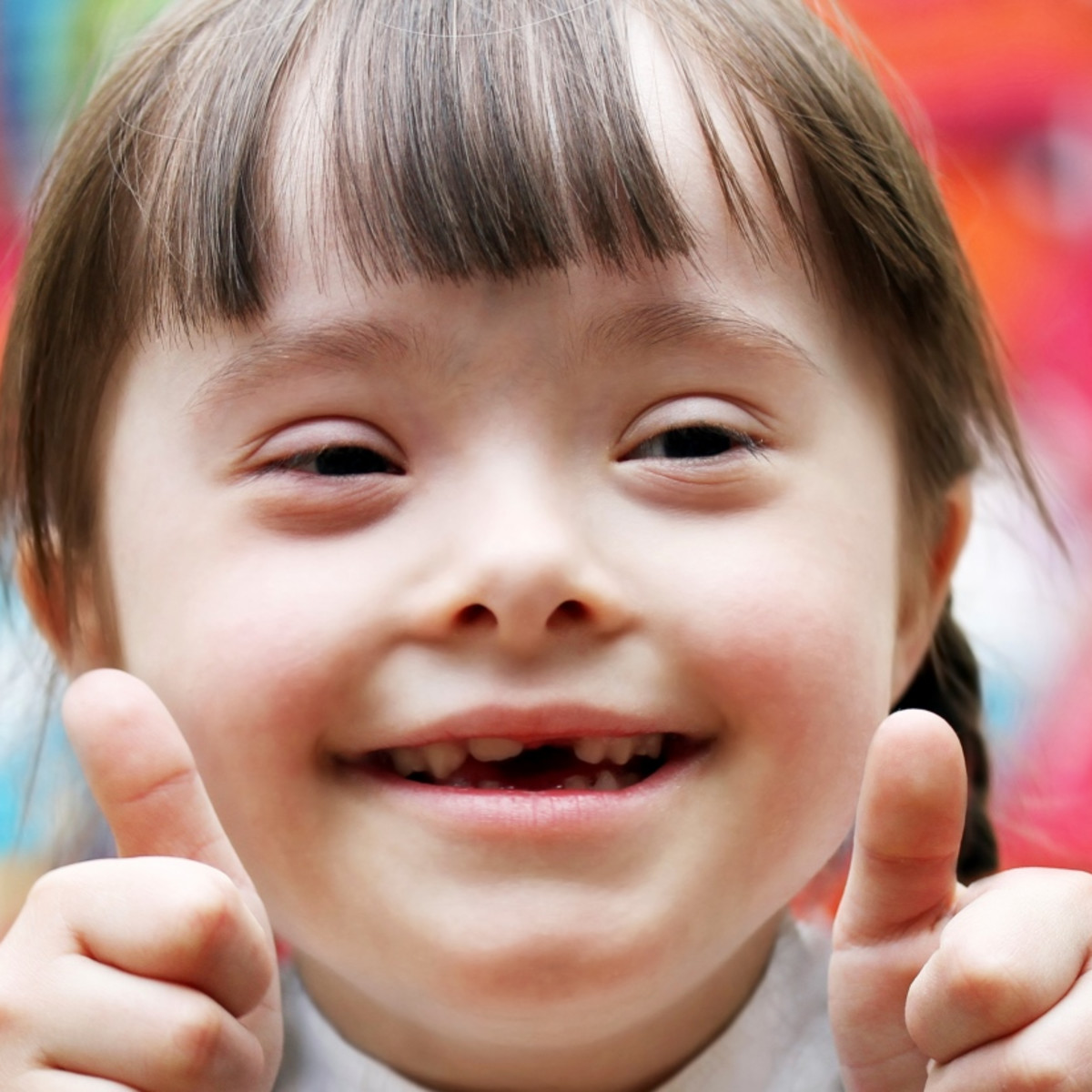 11 Facts About Down Syndrome Dosomething Org