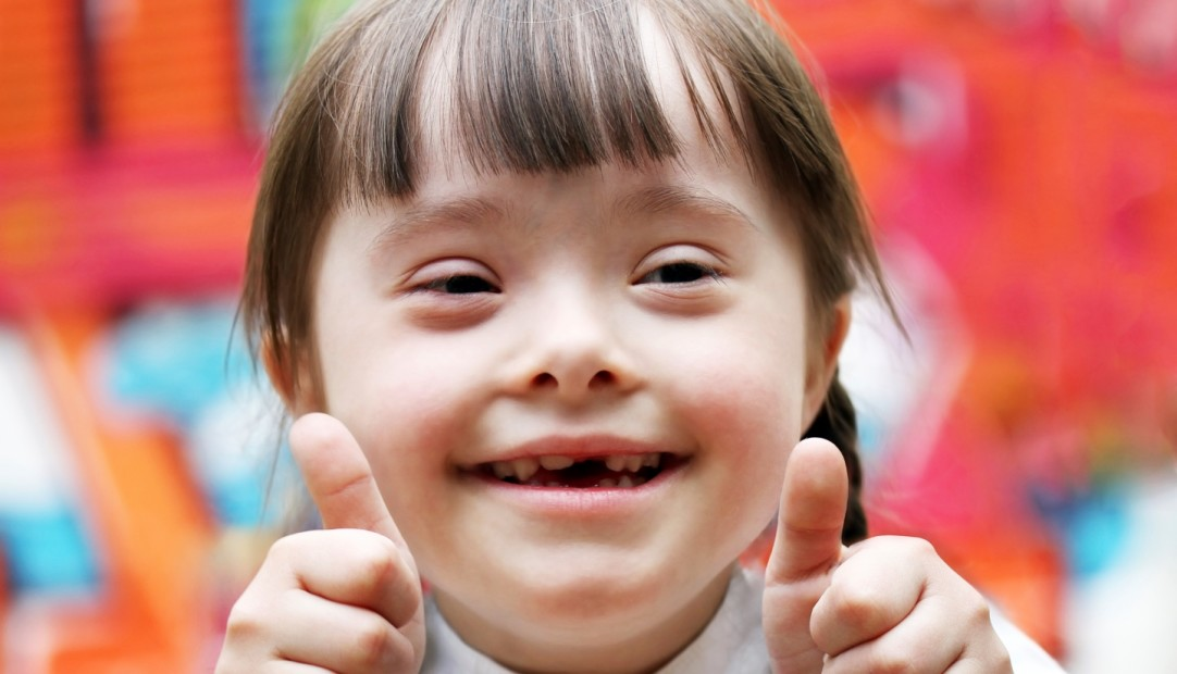 11 Facts About Down Syndrome | DoSomething org