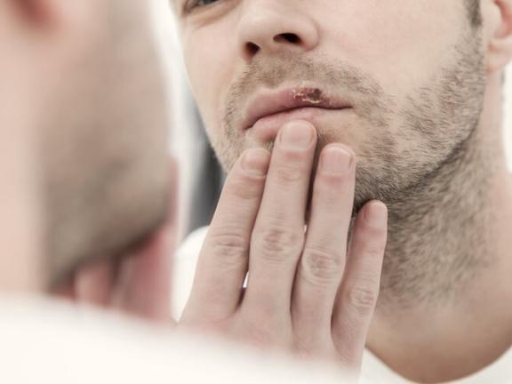 Dauert wie kinn am lange herpes Herpes: Alle