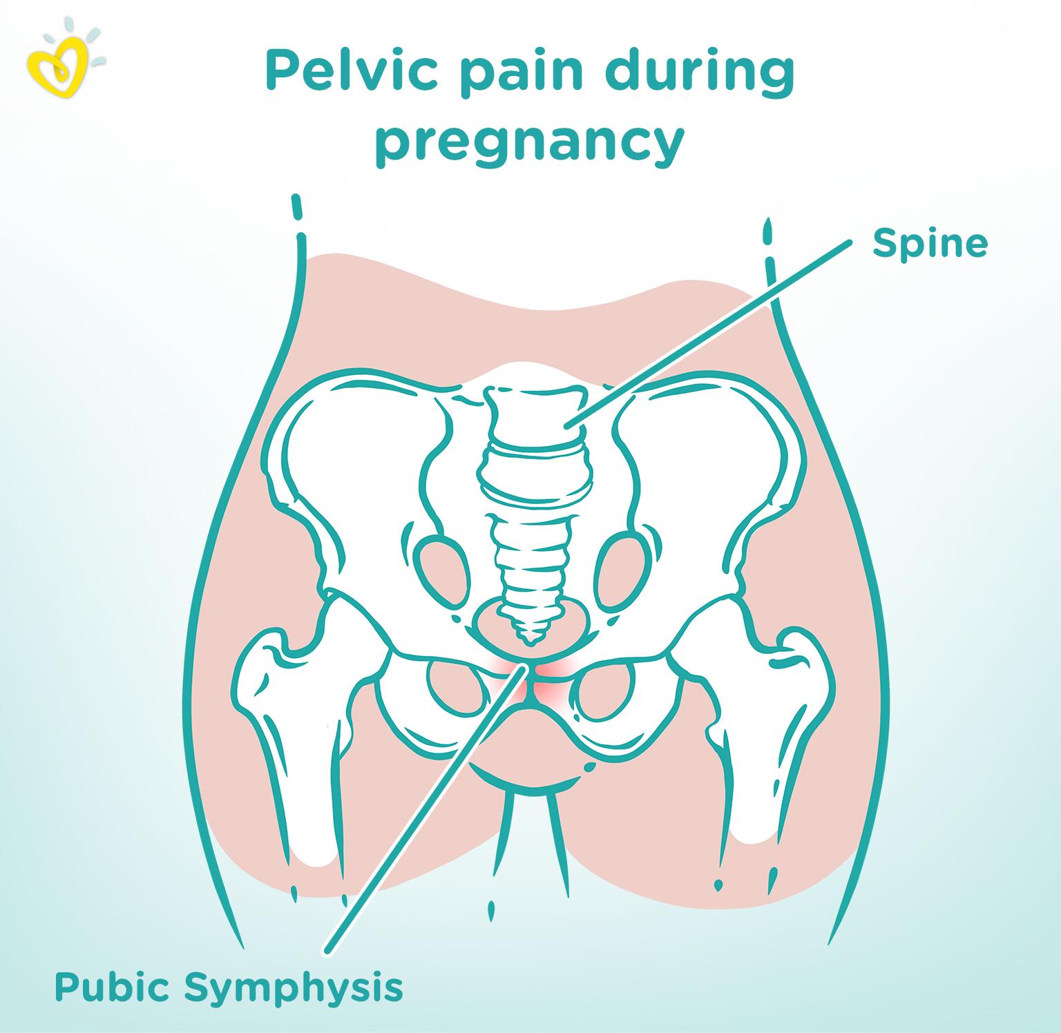 Symphysis Pubis Dysfunction (SPD)—Symptoms and Treatment | Pampers