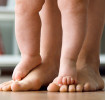 How To Treat Baby Ingrown Toenails