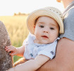 Baby sunburn prevention and treatment