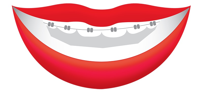 Graphic of mouth with braces