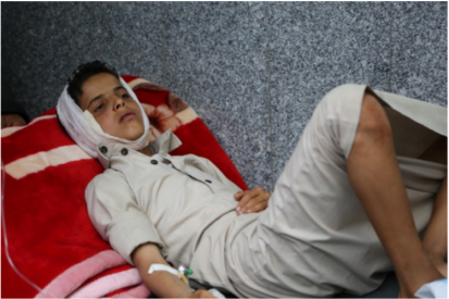 An injured boy being treated at a hospital in Sana'a