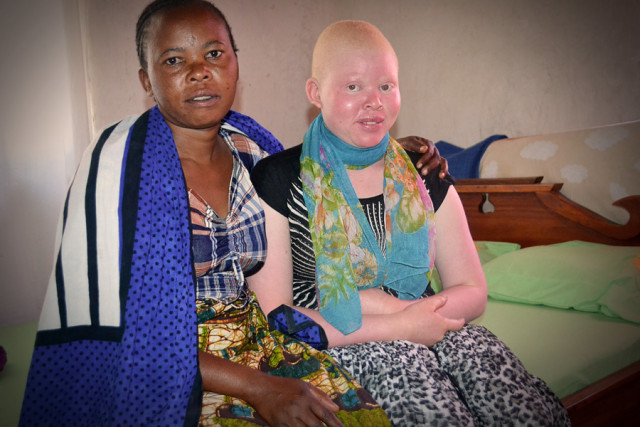Restoring Hope to a Teenager With Albinism