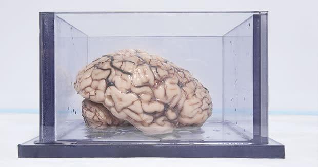 brainhm2.jpg