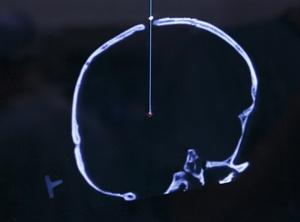 deepbrainsimulation