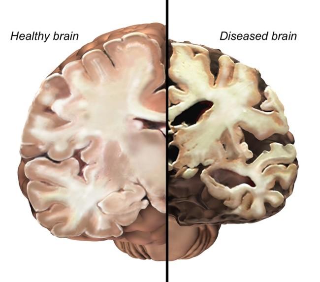 brain-compare