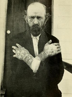 Dermatitis, Pellagra - South Carolina State Board of Health 1909