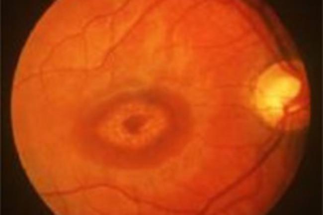 Stargardt-Retina.jpg