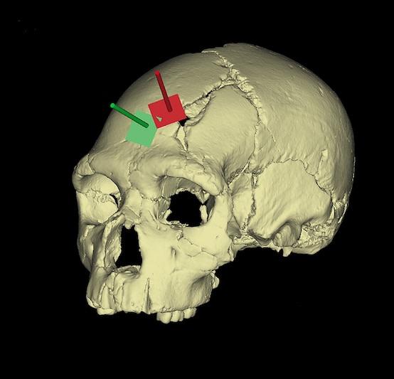 skull fracture sima - PLOS ONE