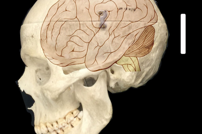This-image-shows-a-human-skull-overlaid-with-an-illustration-of-the-human-brain-CREDIT-Fiddes-et-al-1024x1024.jpg