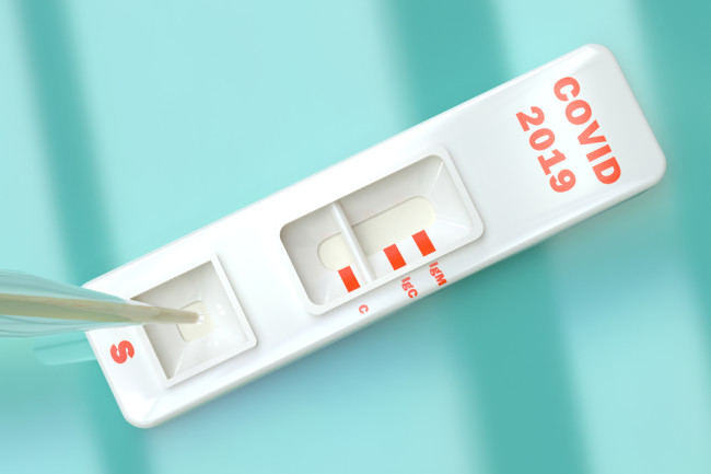 What Do COVID-19 Antibody Tests Show — and Can the Results Be Trusted? |  Discover Magazine