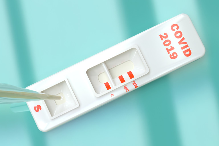 What Do COVID-19 Antibody Tests Show — and Can the Results Be Trusted?