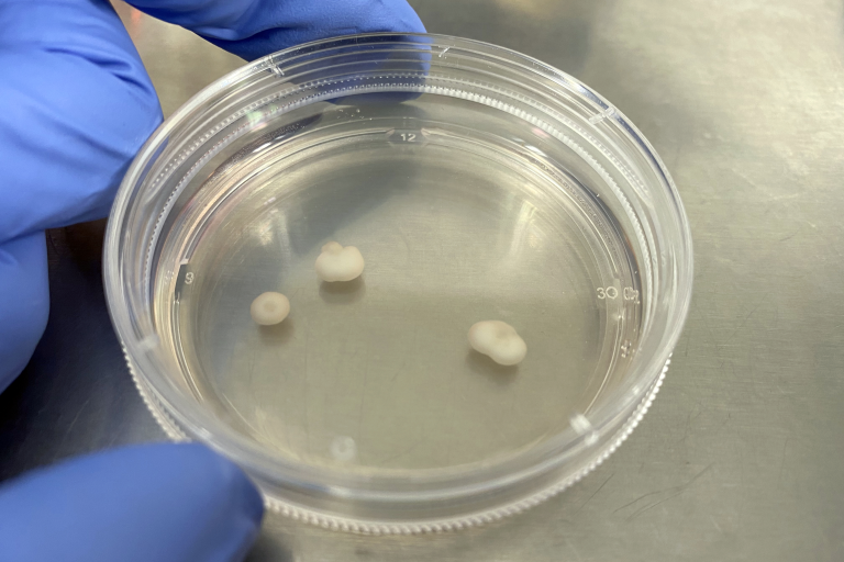 What It's Like to Grow a 'Mini-Brain' From Your Own Cells