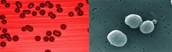 Haemophilius_Streptococcus.jpg
