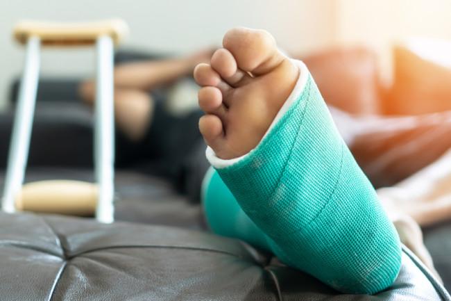 broken leg cast crutches - shutterstock