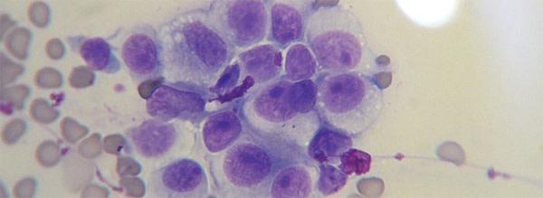 CTVT_cells.jpg