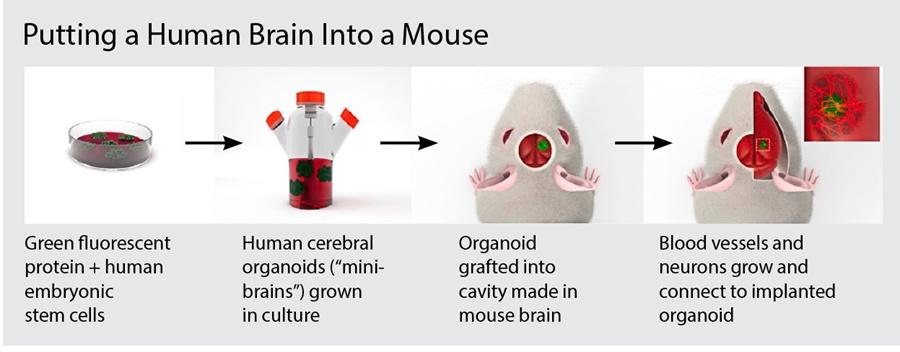 human-brain-mouse