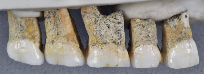 Homo luzonensis teeth - Callao Cave Archaeology Project