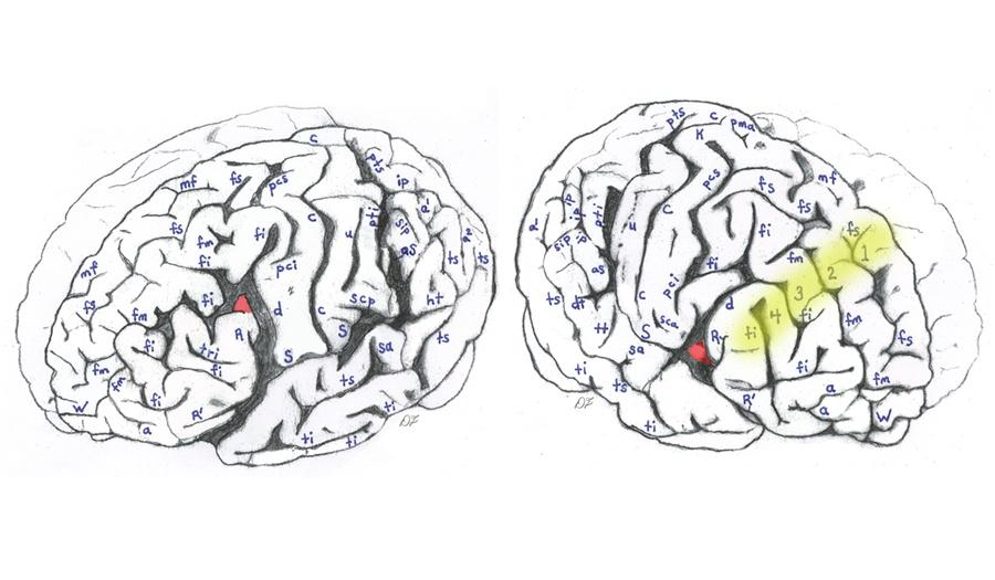 brain-chart