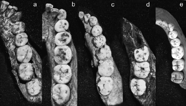 Tooth Comparison - American Journal of Physical Anthropology