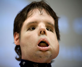 face-transplant-278x225.jpg