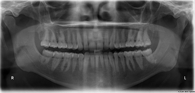800px-X-ray_of_all_32_human_teeth.jpg