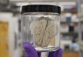 Scientists Brought Brains Brought Back to Life Four Hours After Death
