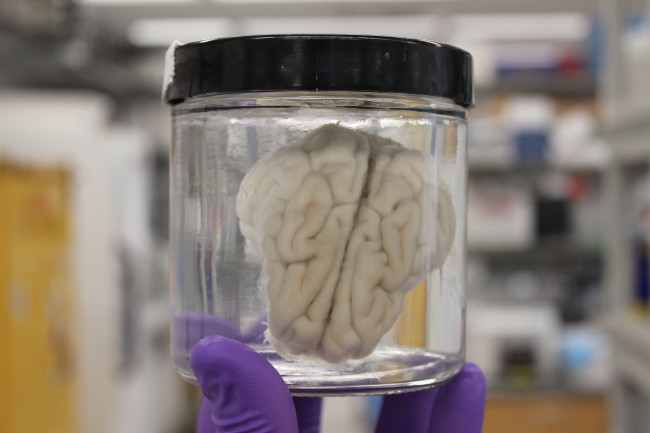 Brain in Jar - Yale