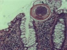 worm-xsection-101201-02.jpg