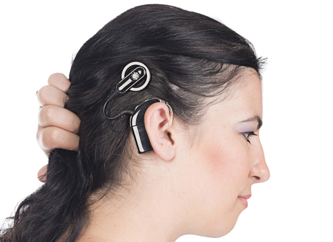 cochlear-implant.jpg