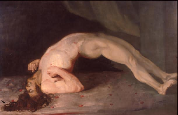 """""""Tetanus Following Gunshot Wounds,"""" 1809. Sir Charles Bell's painting of a soldier suffering from tetanus."""