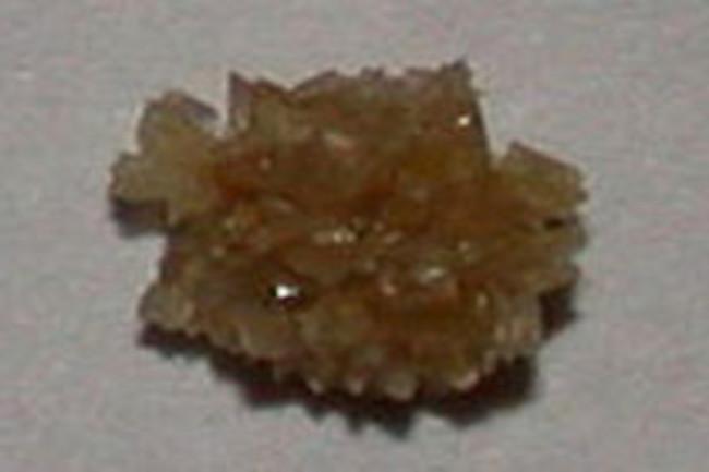 kidney-stone.jpg