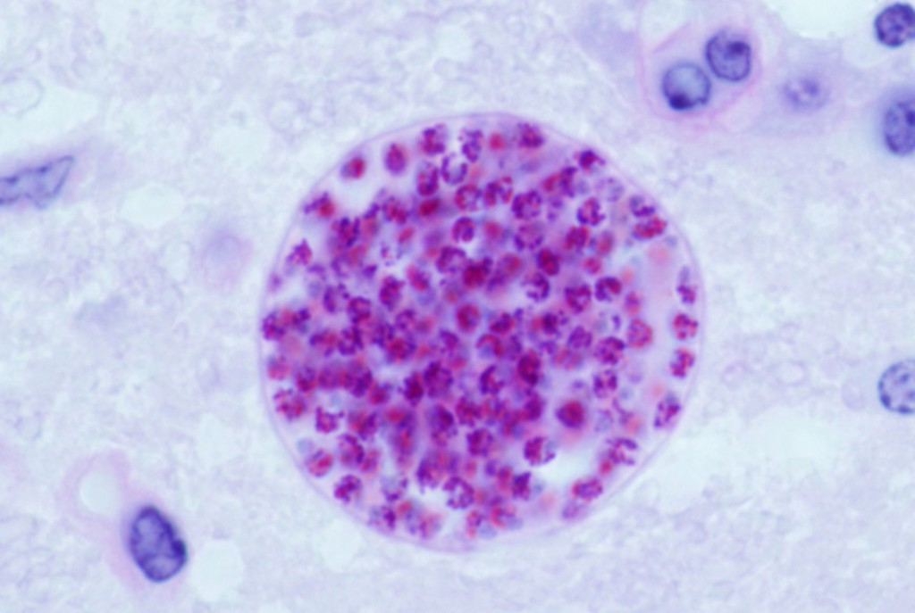 Microscopic cysts containing Toxoplasma gondii