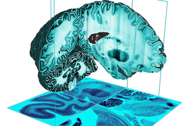 3D-Brain.jpg