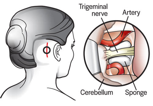 surgical-treatment.jpg