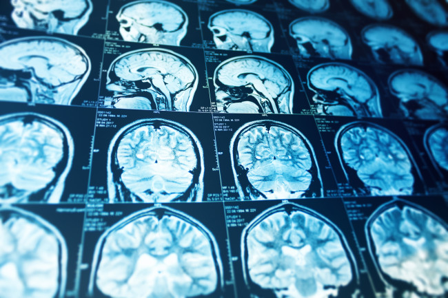 Brain scan - shutterstock