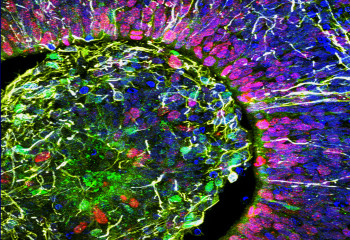 Brain Organoids Grow Neural Circuits, Begin Producing Recognizable Brain Waves
