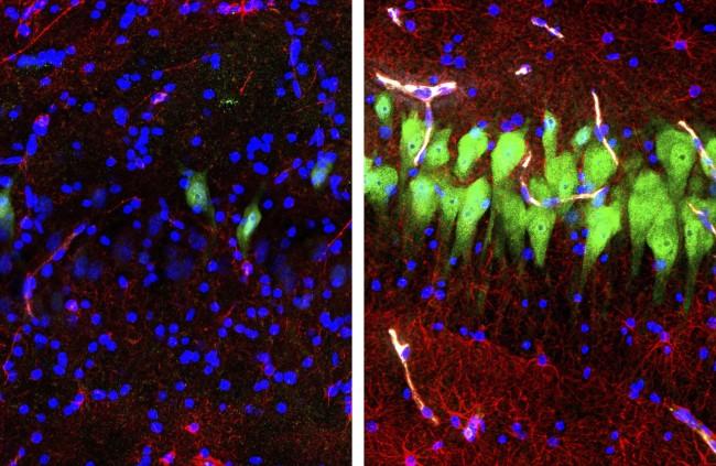 Resurrected Neurons - Yale